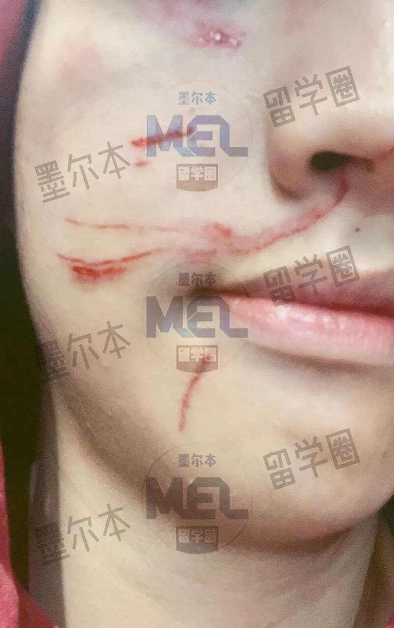 """留学生被无端殴打 满脸是血 暴徒公然叫嚣""""弄死中国学生!"""""""