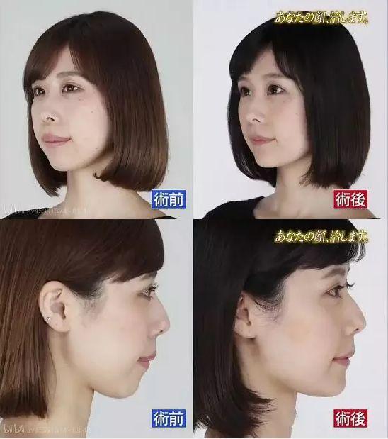 日本整容真的亚洲最好吗?流水线or独家定制,带你看日本整容业