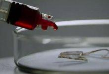 直面 #武汉肺炎 事件,我们需要 #新型冠状病毒 真相-留学世界网