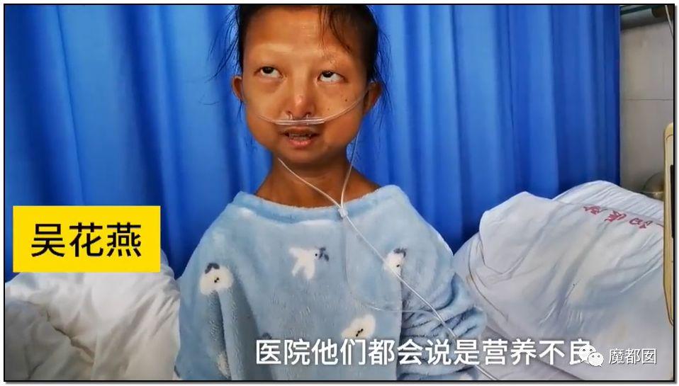 吸血慈善募捐100万只给2万?43斤女大学生离世引发狂怒