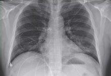 美国第一例 #武汉肺炎 #新型冠状病毒 的诊疗过程完整实录-留学世界网